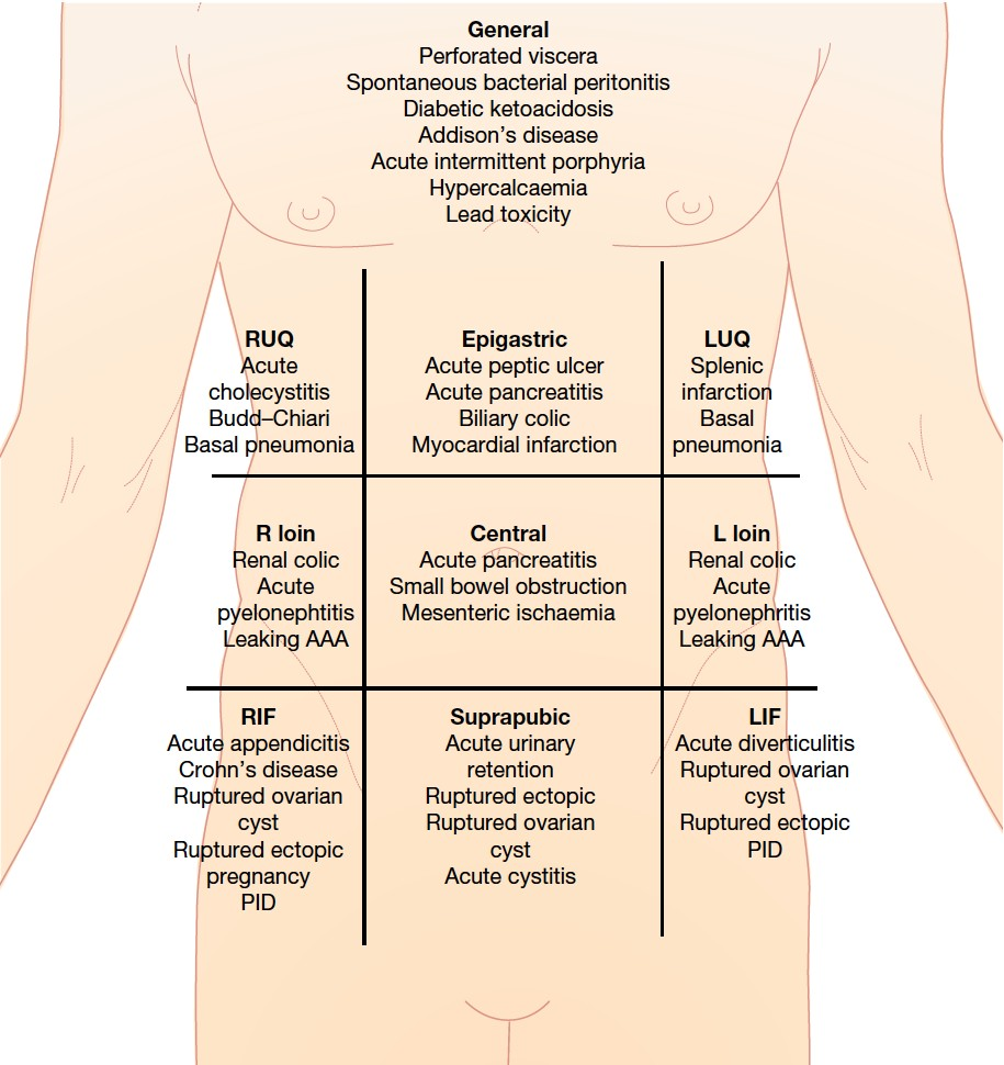 Sites and Causes of Abdominal Pain